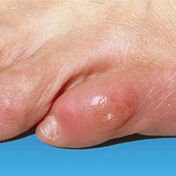 Enlever ses cores au pieds avec les ongles